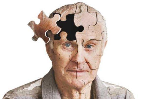 نقش فولیک اسید در کاهش ابتلاء به آلزایمر