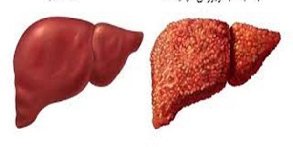 چطور هپاتیت C را درمان کنیم؟