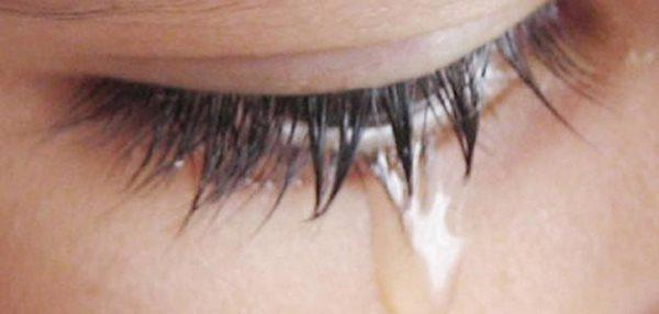 بیماری مرگباری که اشک خونین نشانه آن است