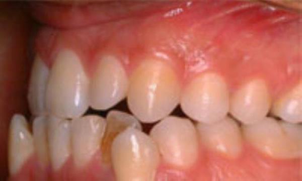 دک کردن دندان اضافی